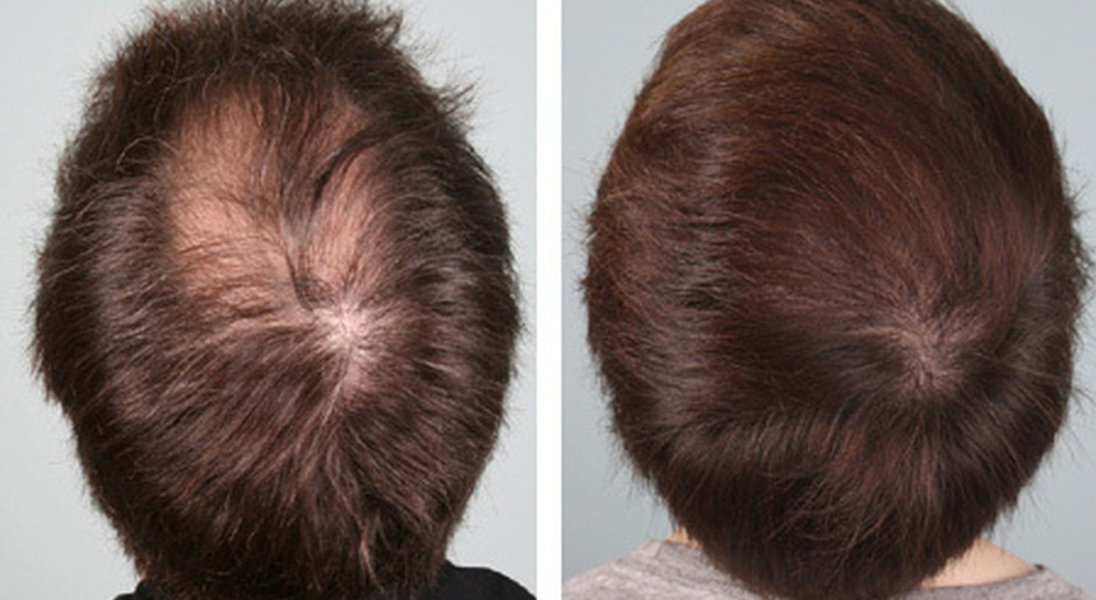 Foltina Plus e i capelli ritornano! | Bioness | Prodotti ...